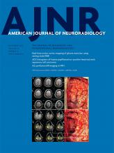 American Journal of Neuroradiology: 38 (11)
