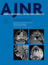 American Journal of Neuroradiology: 38 (12)