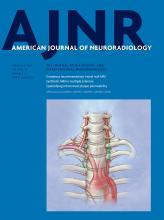 American Journal of Neuroradiology: 38 (2)