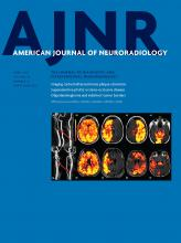 American Journal of Neuroradiology: 38 (4)
