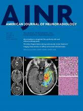 American Journal of Neuroradiology: 38 (5)