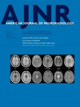 American Journal of Neuroradiology: 38 (6)