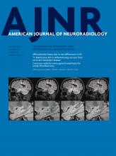 American Journal of Neuroradiology: 38 (8)