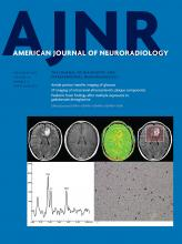 American Journal of Neuroradiology: 38 (9)