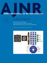 American Journal of Neuroradiology: 39 (10)