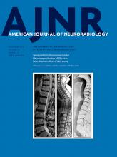 American Journal of Neuroradiology: 39 (11)