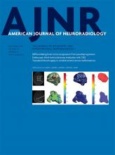 American Journal of Neuroradiology: 39 (12)