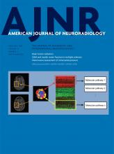 American Journal of Neuroradiology: 39 (2)