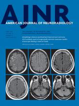American Journal of Neuroradiology: 39 (4)