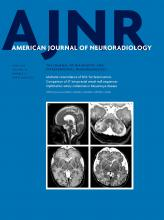 American Journal of Neuroradiology: 39 (6)