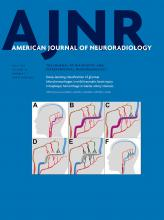 American Journal of Neuroradiology: 39 (7)