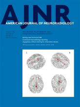 American Journal of Neuroradiology: 39 (8)