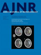 American Journal of Neuroradiology: 39 (9)