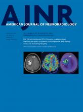 American Journal of Neuroradiology: 40 (2)
