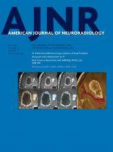 American Journal of Neuroradiology: 40 (7)