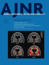 American Journal of Neuroradiology: 40 (8)