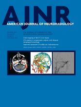 American Journal of Neuroradiology: 40 (9)