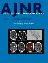 American Journal of Neuroradiology: 41 (1)