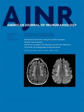 American Journal of Neuroradiology: 41 (10)