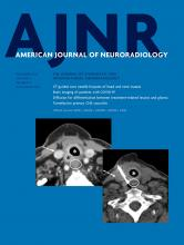 American Journal of Neuroradiology: 41 (11)