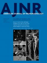 American Journal of Neuroradiology: 41 (2)