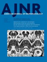 American Journal of Neuroradiology: 41 (5)