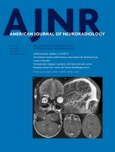 American Journal of Neuroradiology: 41 (7)