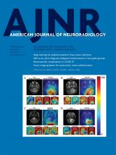 American Journal of Neuroradiology: 41 (9)