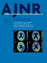 American Journal of Neuroradiology: 42 (1)