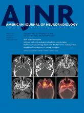 American Journal of Neuroradiology: 42 (3)