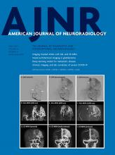 American Journal of Neuroradiology: 42 (4)